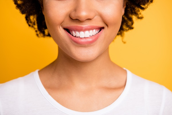 FAQs About KoR Teeth Whitening
